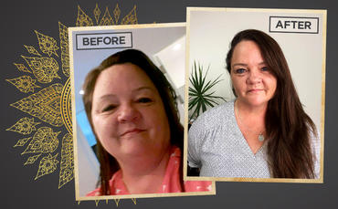 Self-compassion, surgery and success: how Paula made her dream happen